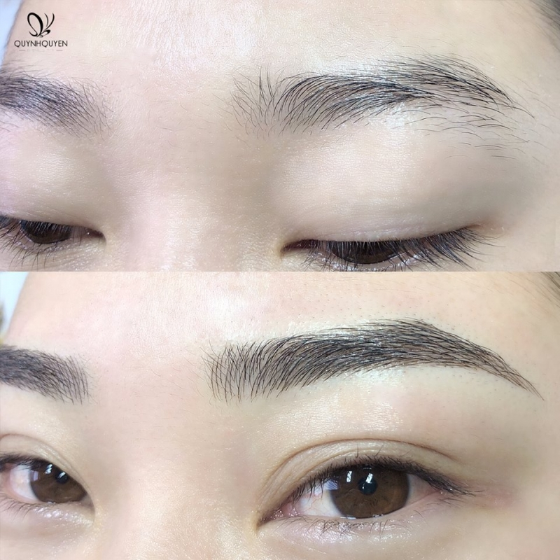 quynhquyen-beauty-center-206460